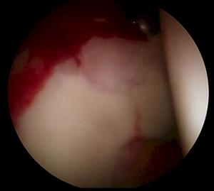 Lesión condral asociada al CFA en visión artroscópica